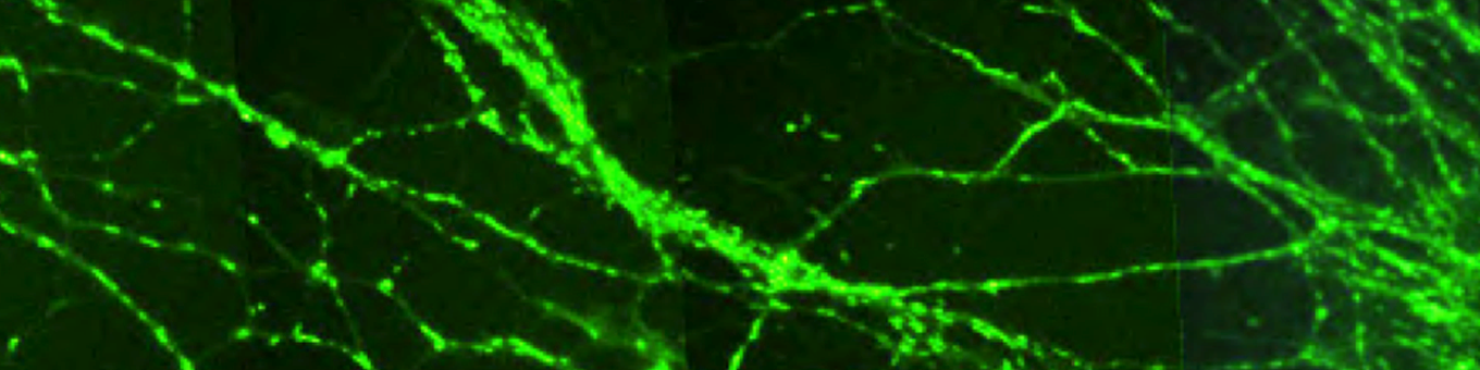 Microscopic green and black image showing connection between neurones