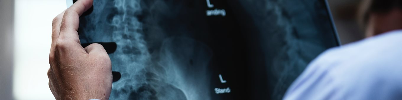 Doctor inspects an X-ray image of a spine and pelvic bone